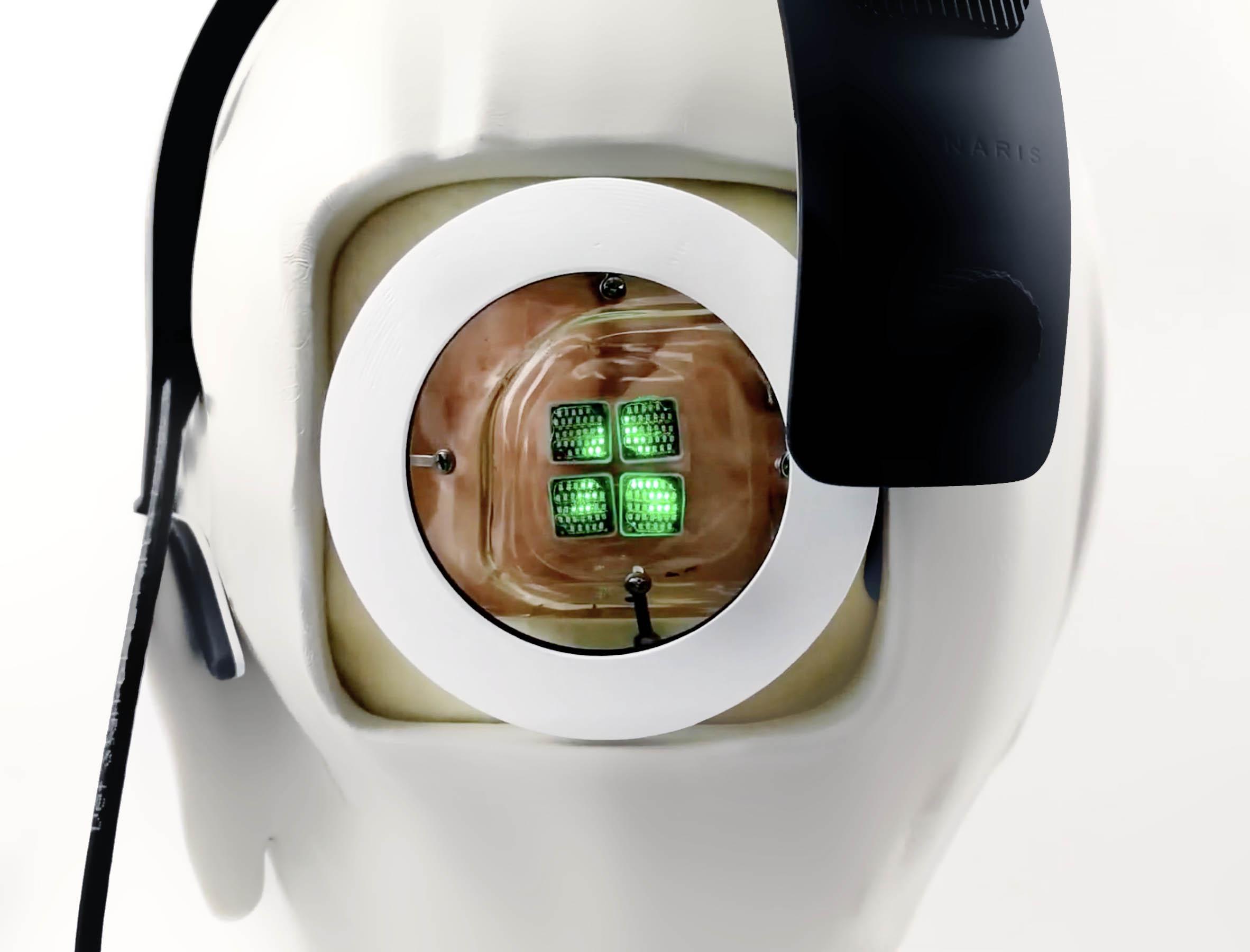 como funciona o olho biônico para cegos