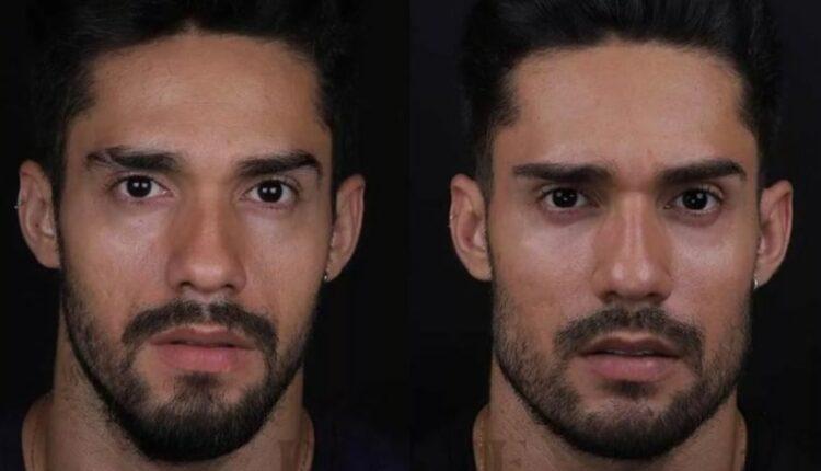 Antes e depois de Arcrebiano na Harmonização facial