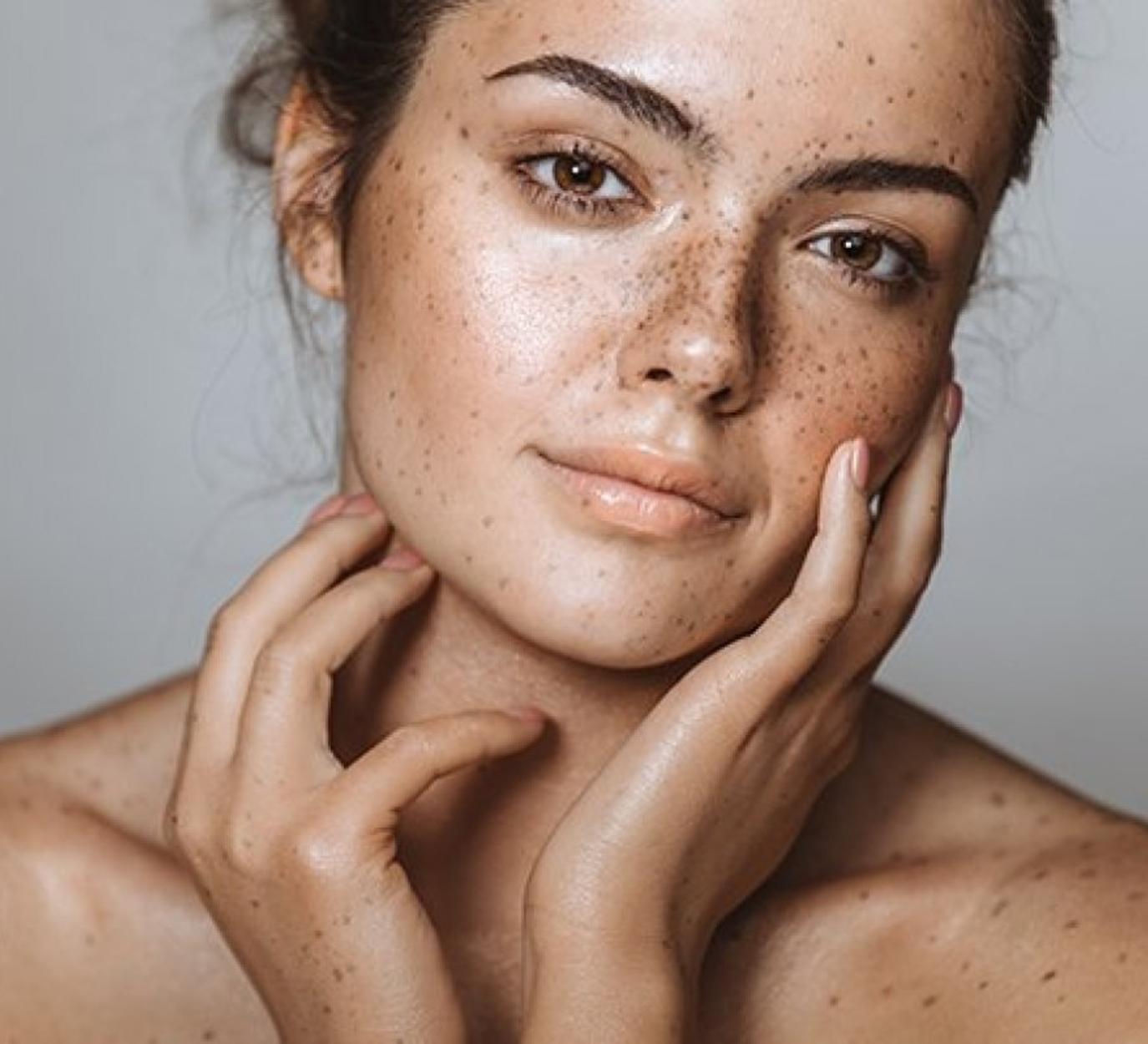 pele com melasma